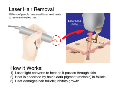 Does laser hair removal hurts? Is it worth the money