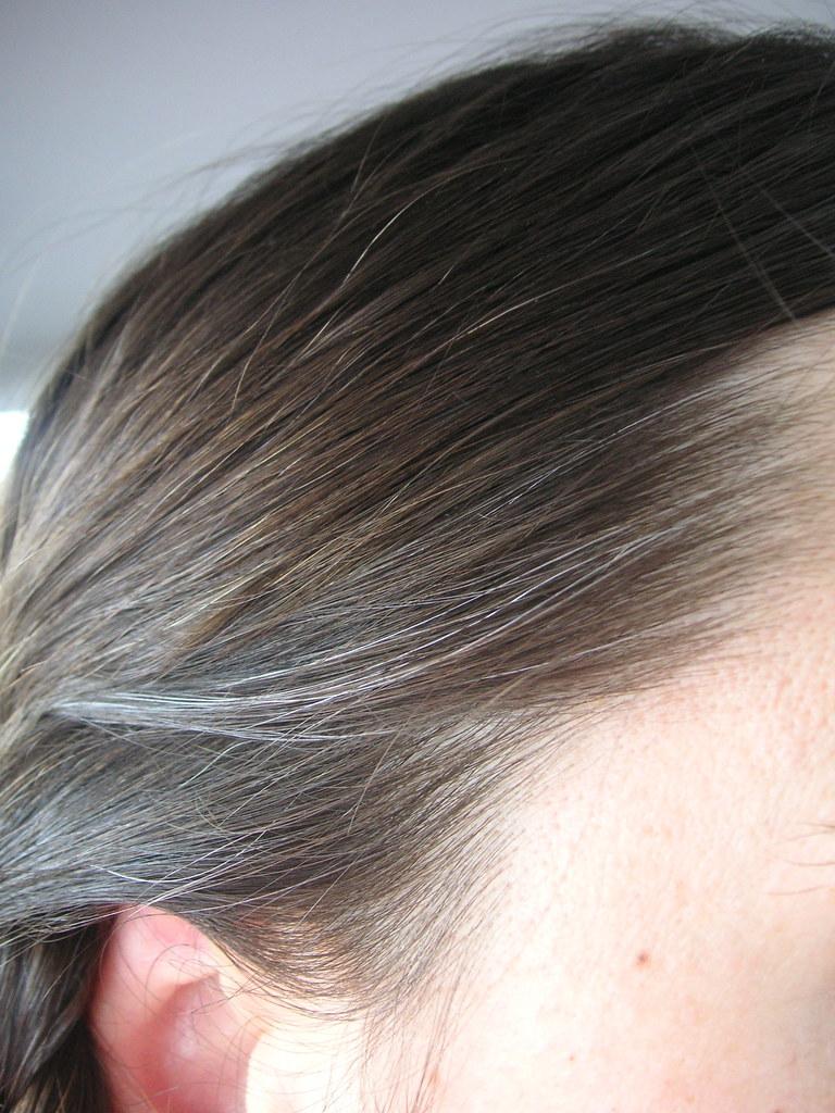 gray hair at 20
