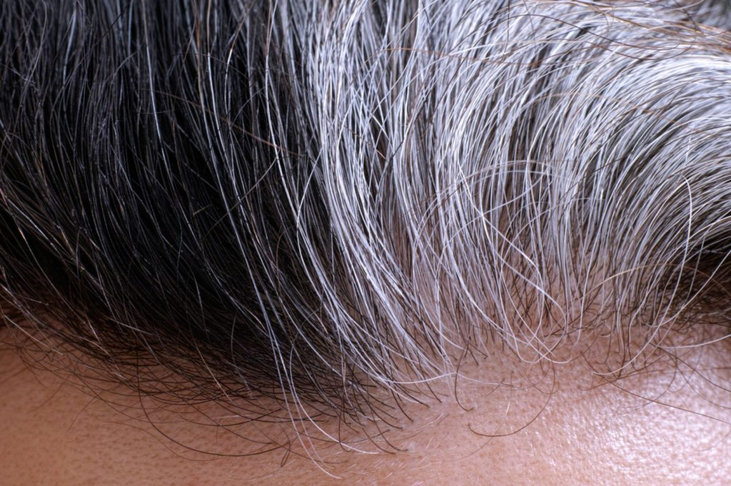 can hair turn white from stress